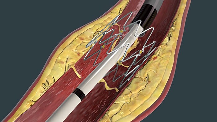 TACK Endovascular System youtube video thumbnail