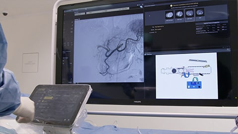 Interventional radiology video