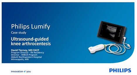 lumify case study youtube video thumbnail