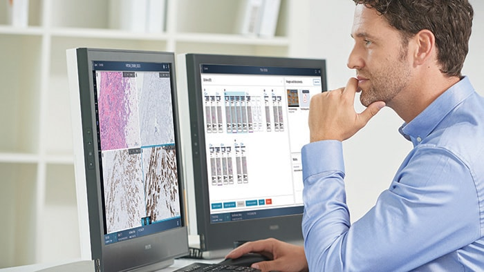 Philips and Ibex Medical Analytics team to accelerate adoption of AI-powered digital pathology